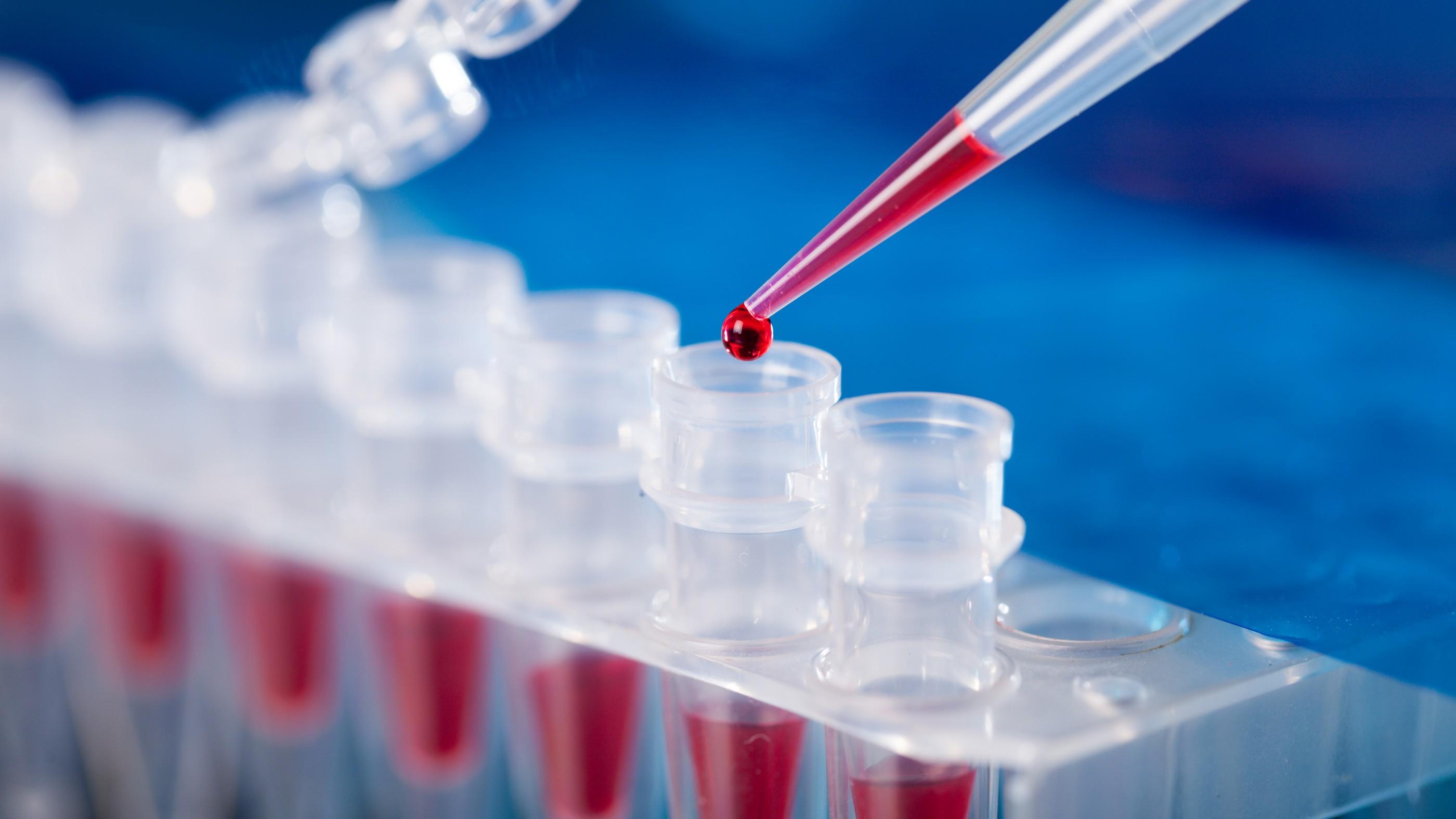 تست PCR چیست؟