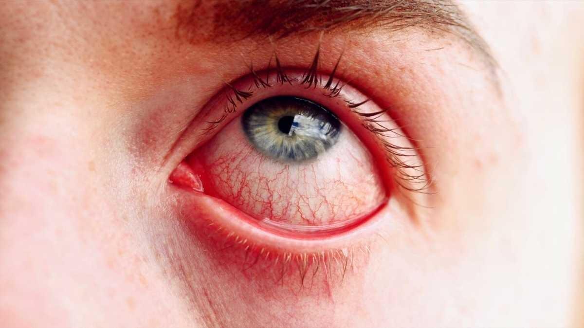 علل مهم قرمزی چشم