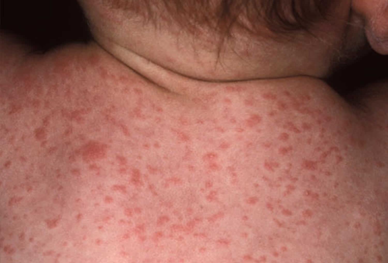علائم و نشانه های تب حصبه و تب پاراتیفوئید چیست؟