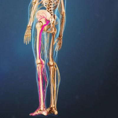 ورزش هایی جهت بهبود دردهای سیاتیک