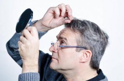 فشار عصبی باعث سفید شدن موهای سر میشود