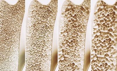 پوکی استخوان: آنچه در هر سنی باید بدانید