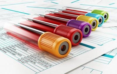دانستنی ها راجع به آزمایش خون