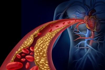 علائم نشان دهنده اختلال در گردش خون