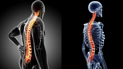 مشکلات دیسک نخاعی: انواع ، علائم ، علل ، درمان