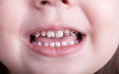 لکه های سیاه دندان و درمان آنها