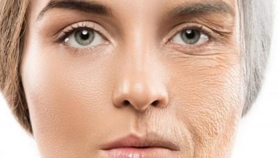 انواع روش برای رفع چین و چروک صورت