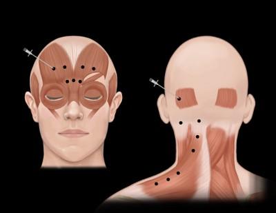 تزریق بوتاکس |استفاده درمانی از سم بوتولینوم