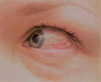 خارش چشم و دلایل آن |علائم ، علل و روش های درمانی