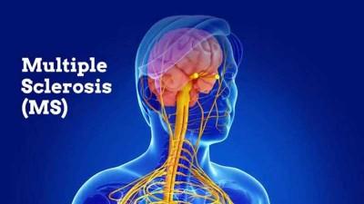 درمان بیماری MS