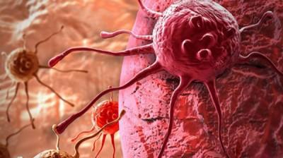 همه چیز راجع به سلولهای سرطانی
