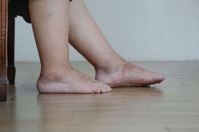 درمان خانگی برای بهبود تورم پا