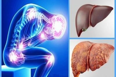درمان بیماری کبد چرب