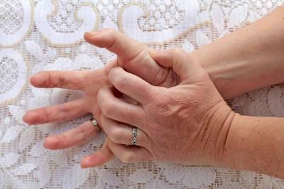 نکاتی برای پیشگیری از بیماری های پوستی