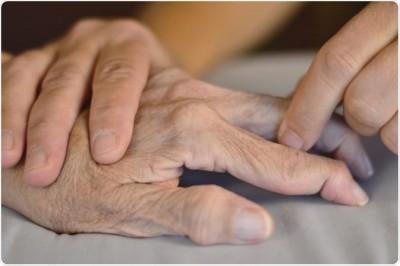 آیا روش های طبیعی برای آرتریت روماتوئید وجود دارد؟